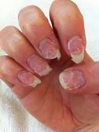 Start Repairing Your Nails After Acrylics – We Are All Fools In Love
